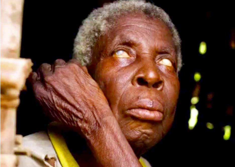 Cataract Surgeries